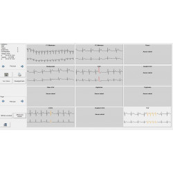 ePatch Holter ECG Millennia 1000