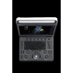 Échographe portable Sonoscape E2 EXPERT Lizemed