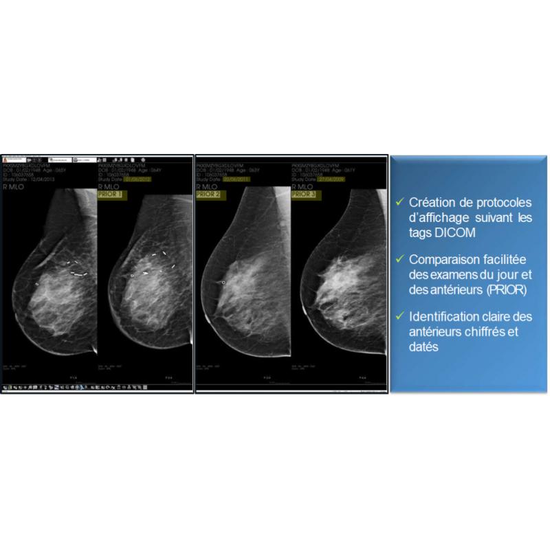 Fiche de présentation de diagnostic n°4 pour la mammographie
