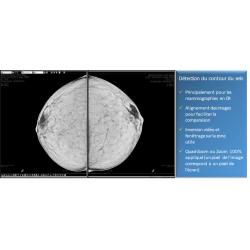 Fiche de présentation de diagnostic n°5 pour la mammographie