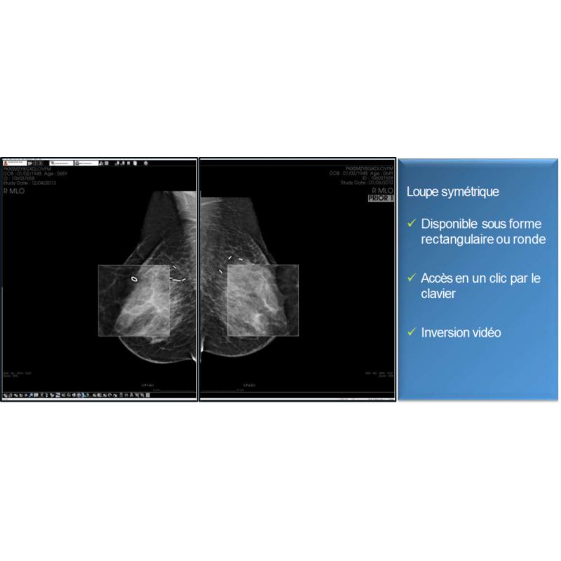 Fiche de présentation de diagnostic n°6 pour la mammographie