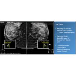 Fiche de présentation de diagnostic n°7 pour la mammographie