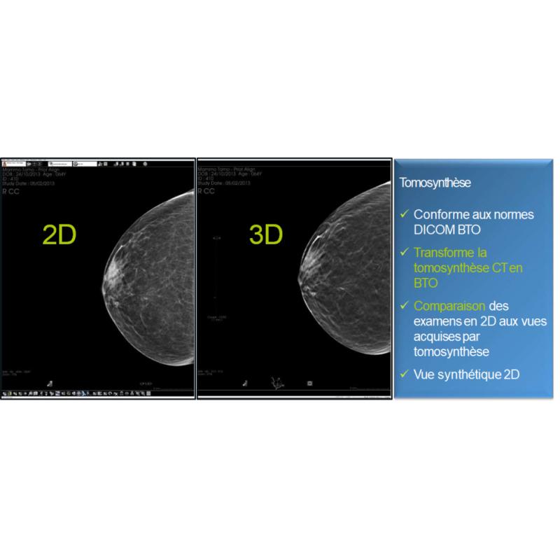 Fiche de présentation de diagnostic n°9 pour la mammographie