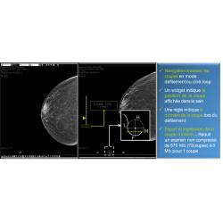 Fiche de présentation de diagnostic n°10 pour la mammographie