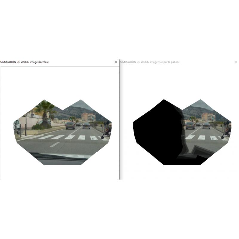 Appareil de champ visuel - Simulation de vision MONCV3