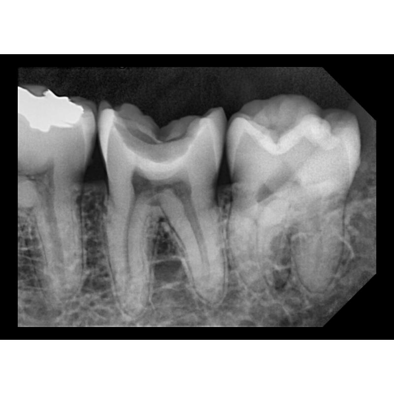 Exemple d'imagerie capté par capteur intra oral - Dents vues de côté