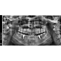 Exemple d'image de Radio panoramique dentaire 3d - Vue dentaire de face