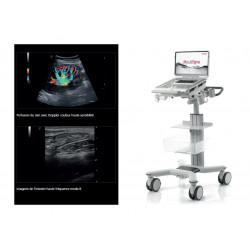 Fiche de présentation de l'échographe portable Mylab Sigma
