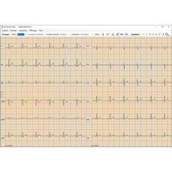 ECG PC EOLYS Lizemed
